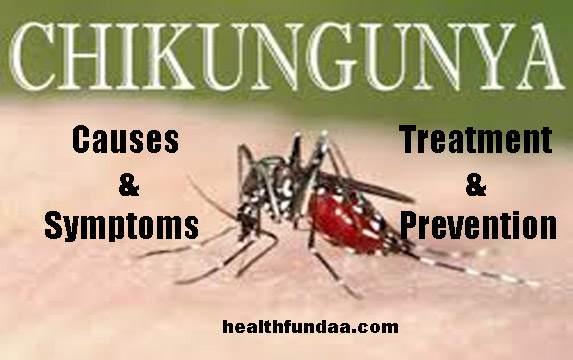 Chikungunya: Causes Symptoms Treatment & Prevention