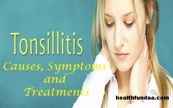 Tonsillitis: Causes, Symptoms and Treatments