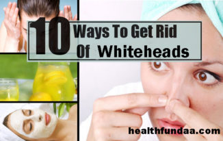 How to Get Rid of Whiteheads: 10 Best Home Remedies